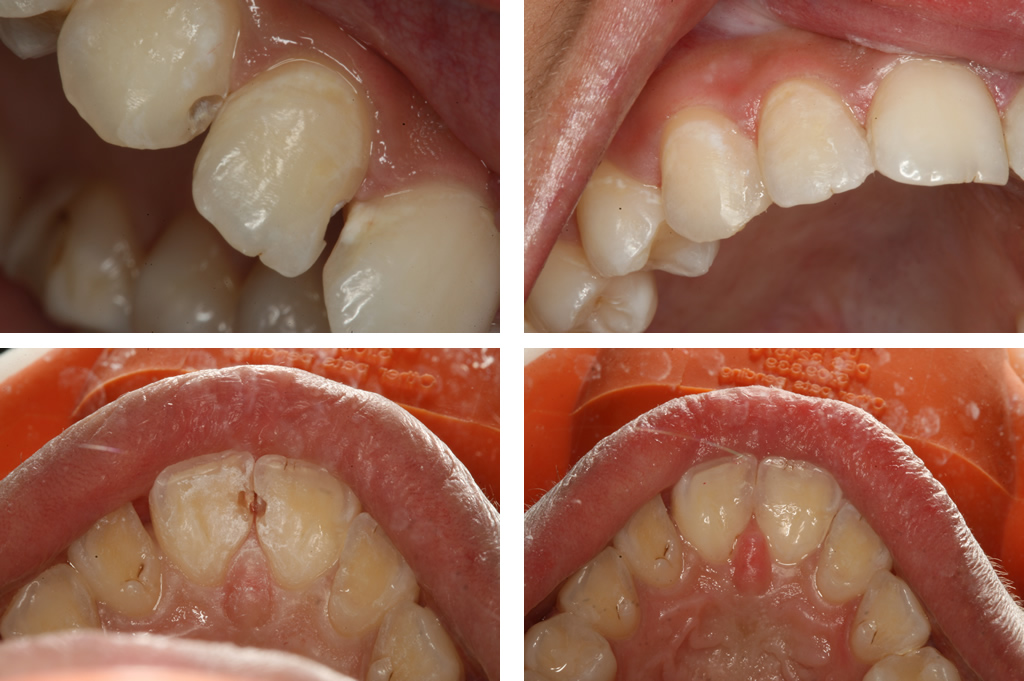 Decay between teeth replaced with a tooth color filling