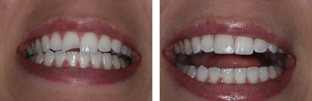 Tooth Color Filling