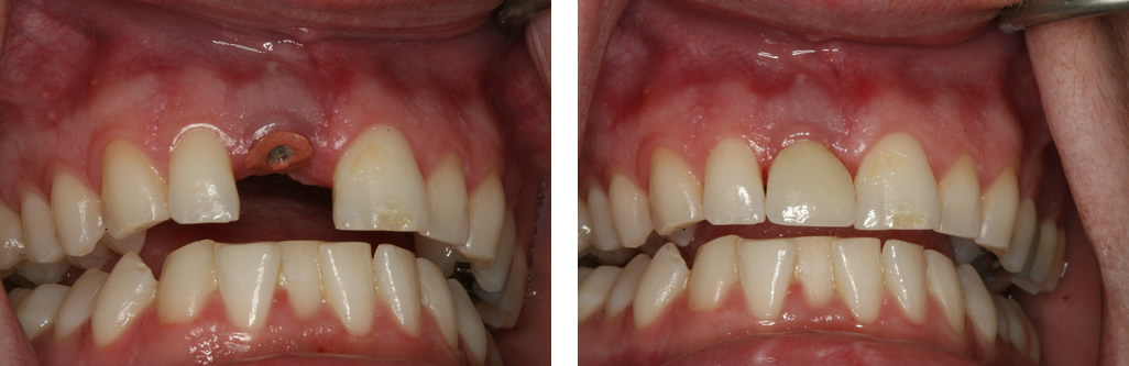 Single Tooth Implant - Front Tooth